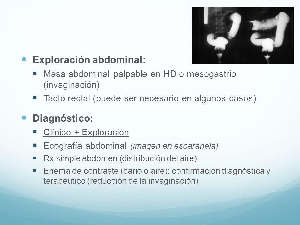 Exploración abdominal: Masa abdominal palpable en HD o mesogastrio (invaginación) Tacto rectal (puede ser necesario en algunos casos) Diagnóstico: Clí