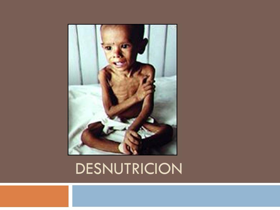 DEFINICION: Significa que el cuerpo de una persona no está obteniendo los nutrientes suficientes.