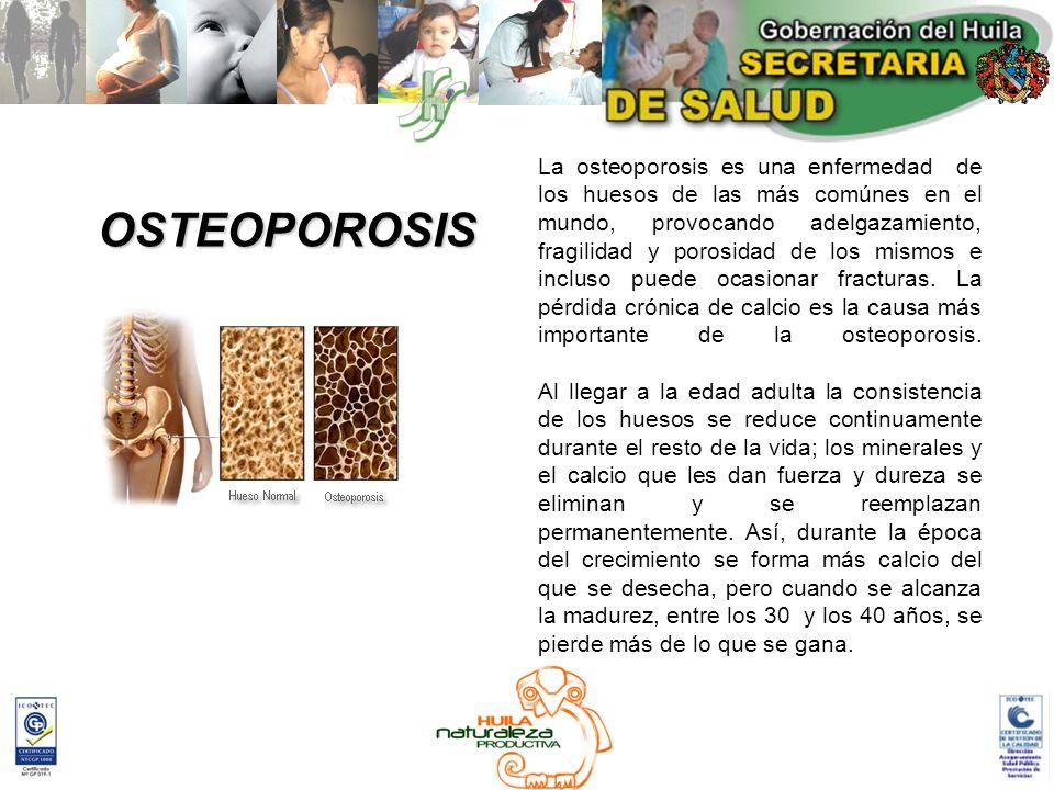 OSTEOPOROSIS La osteoporosis es una enfermedad de los huesos de las más comúnes en el mundo, provocando adelgazamiento, fragilidad y porosidad de los