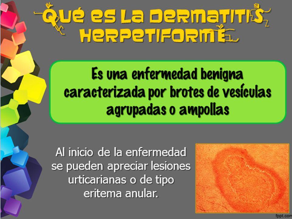 ¿ ué es la dermatiti herpetiform Es una enfermedad benigna caracterizada por brotes de vesiculas agrupadas o ampollas q s e Al inicio de la enfermedad