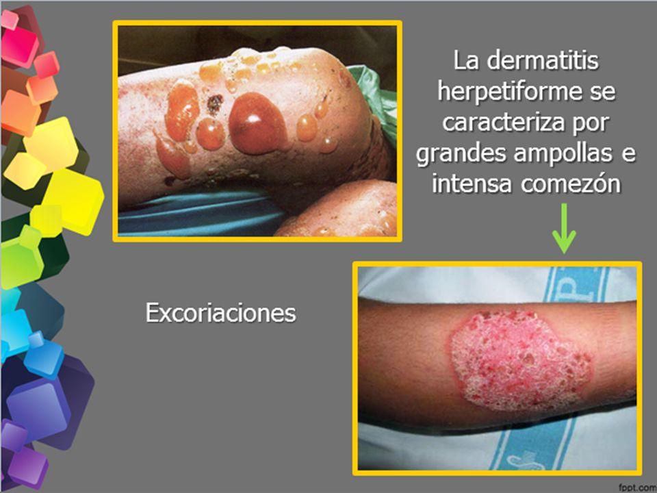 La dermatitis herpetiforme se caracteriza por grandes ampollas e intensa comezón Excoriaciones