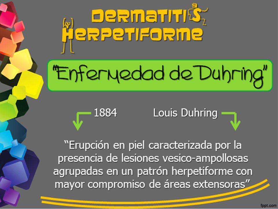 dermatiti erpetiforme h s Enfermedad de Duhring 1884 Louis Duhring Erupción en piel caracterizada por la presencia de lesiones vesico-ampollosas agrup