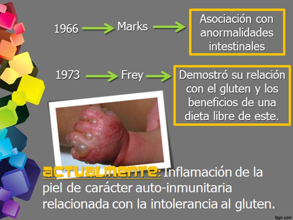1966 Marks Asociación con anormalidades intestinales 1973Frey Demostró su relación con el gluten y los beneficios de una dieta libre de este. Actualme