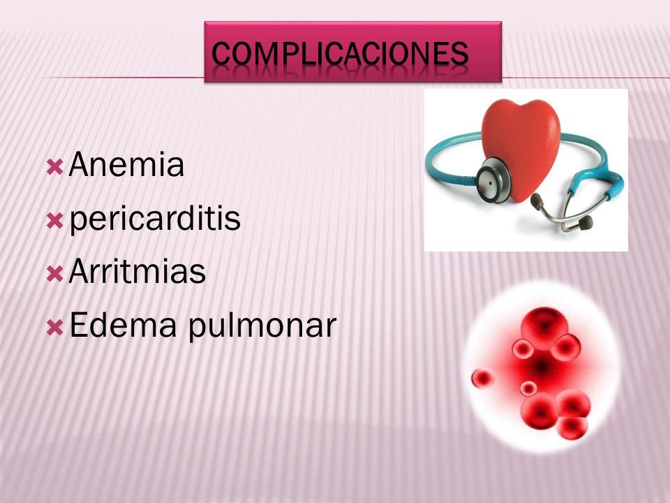 Anemia pericarditis Arritmias Edema pulmonar