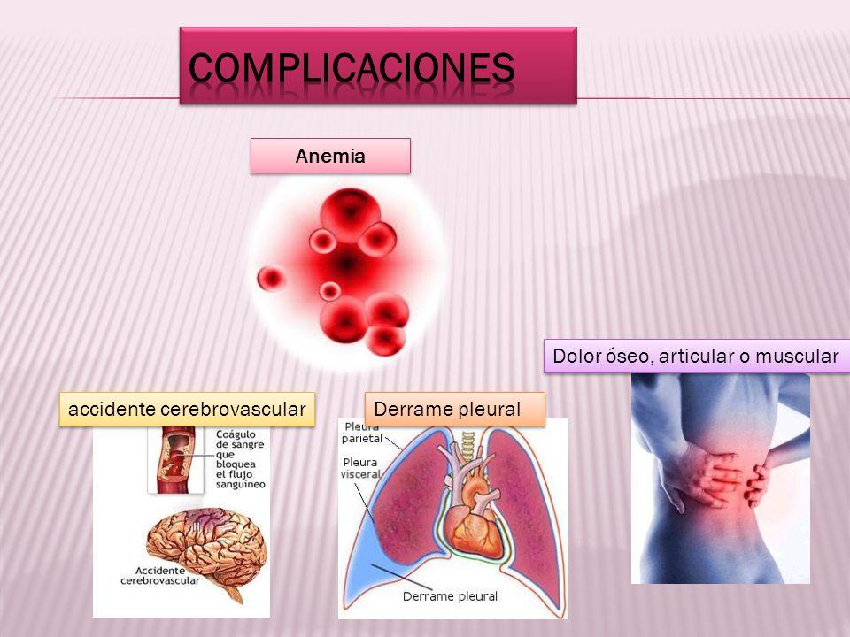 Anemia Dolor óseo, articular o muscular Derrame pleural accidente cerebrovascular
