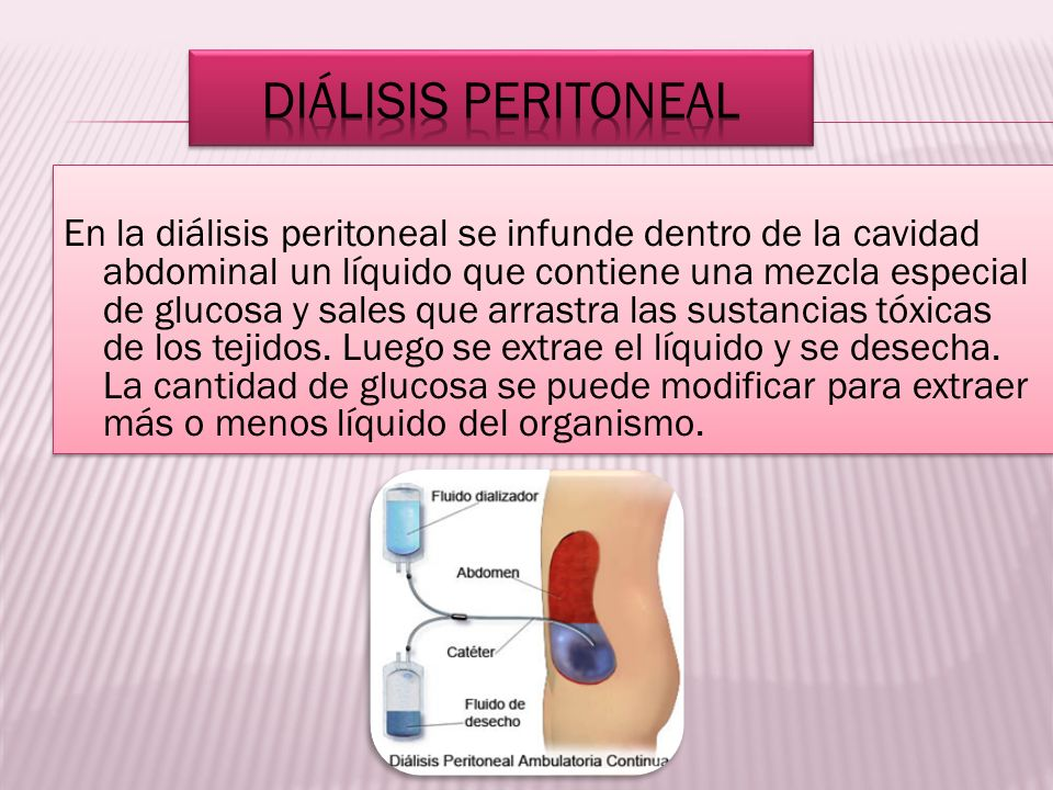 En la diálisis peritoneal se infunde dentro de la cavidad abdominal un líquido que contiene una mezcla especial de glucosa y sales que arrastra las su
