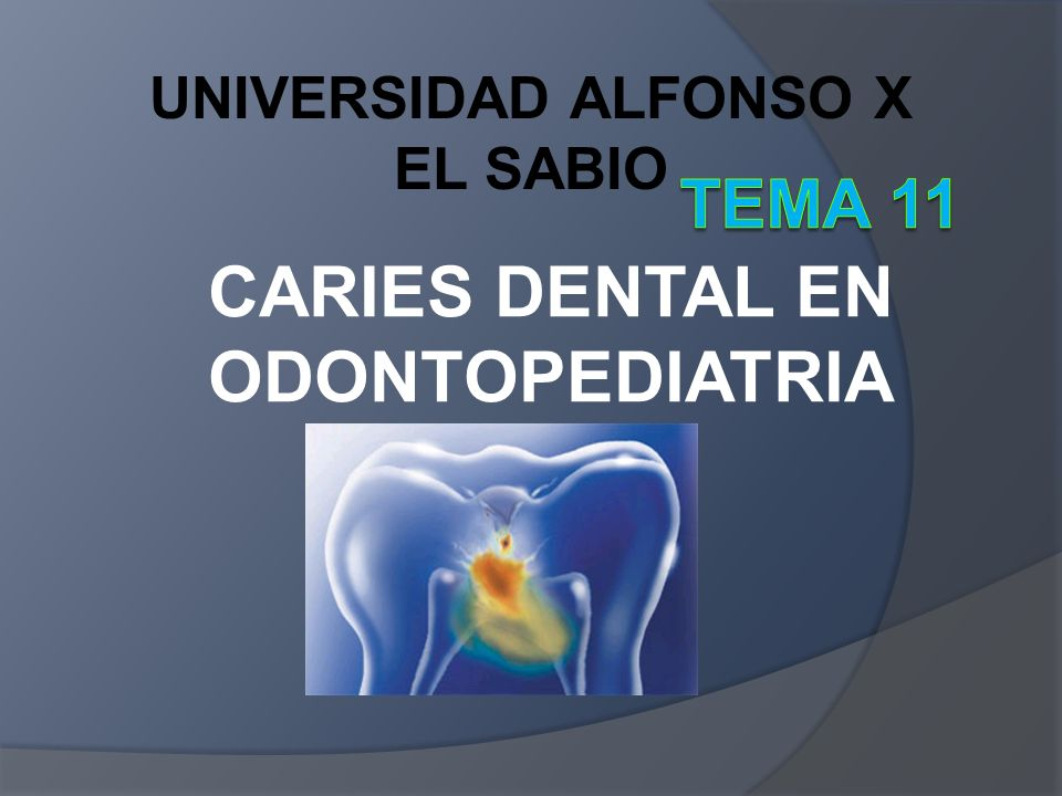 CARIES DENTAL EN ODONTOPEDIATRIA UNIVERSIDAD ALFONSO X EL SABIO