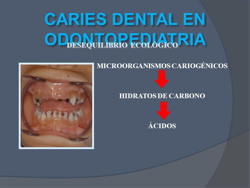 MICROORGANISMOS CARIOGÉNICOS HIDRATOS DE CARBONO ÁCIDOS CARIES DENTAL EN ODONTOPEDIATRIA DESEQUILIBRIO ECOLÓGICO