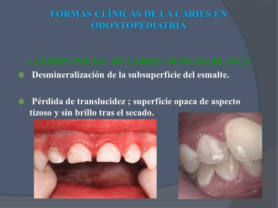 1.LESIÓN INICIAL DE CARIES: MANCHA BLANCA Desmineralización de la subsuperficie del esmalte. Pérdida de translucidez ; superficie opaca de aspecto tiz