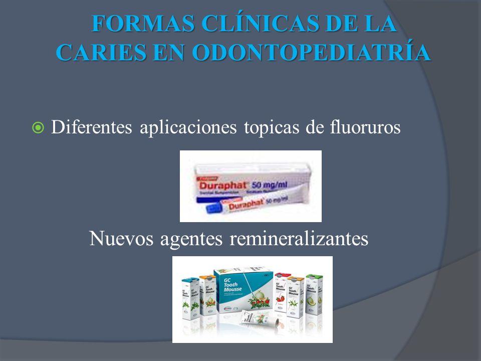 FORMAS CLÍNICAS DE LA CARIES EN ODONTOPEDIATRÍA Diferentes aplicaciones topicas de fluoruros Nuevos agentes remineralizantes