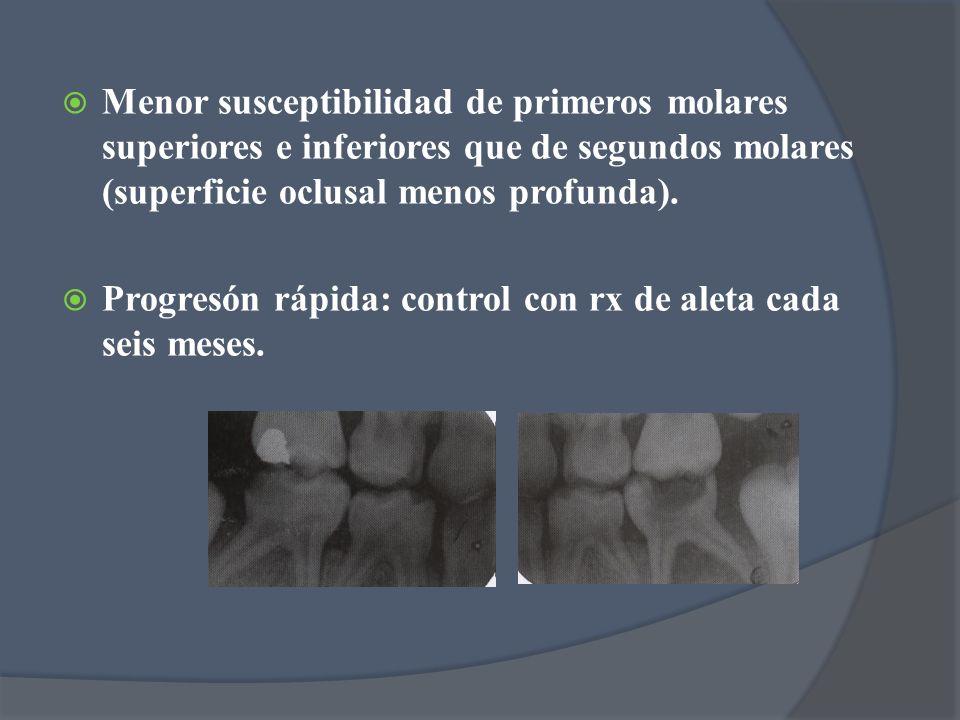 Menor susceptibilidad de primeros molares superiores e inferiores que de segundos molares (superficie oclusal menos profunda). Progresón rápida: contr