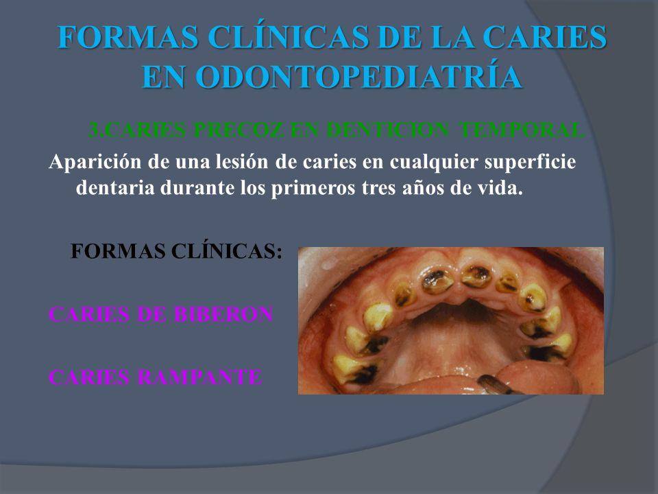 3.CARIES PRECOZ EN DENTICION TEMPORAL Aparición de una lesión de caries en cualquier superficie dentaria durante los primeros tres años de vida. FORMA