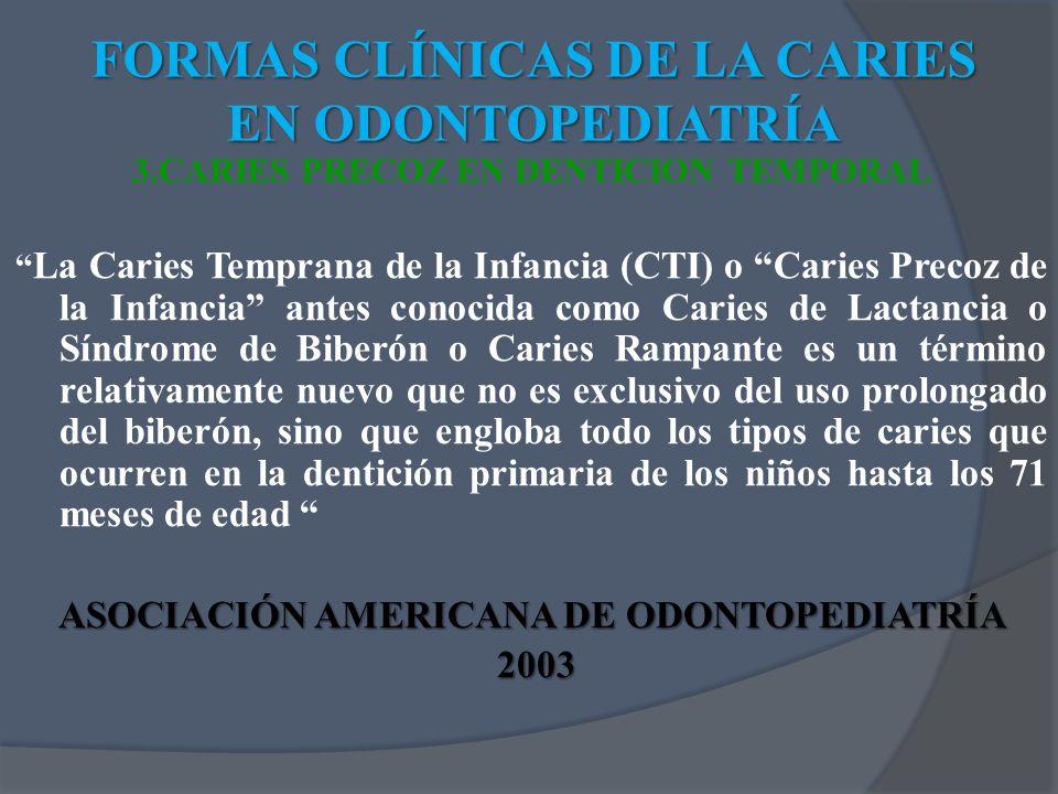 3.CARIES PRECOZ EN DENTICION TEMPORAL La Caries Temprana de la Infancia (CTI) o Caries Precoz de la Infancia antes conocida como Caries de Lactancia o