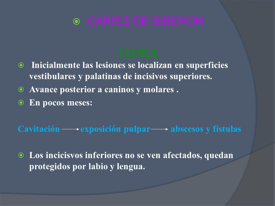 CARIES DE BIBERON CLINICA Inicialmente las lesiones se localizan en superficies vestibulares y palatinas de incisivos superiores. Avance posterior a c