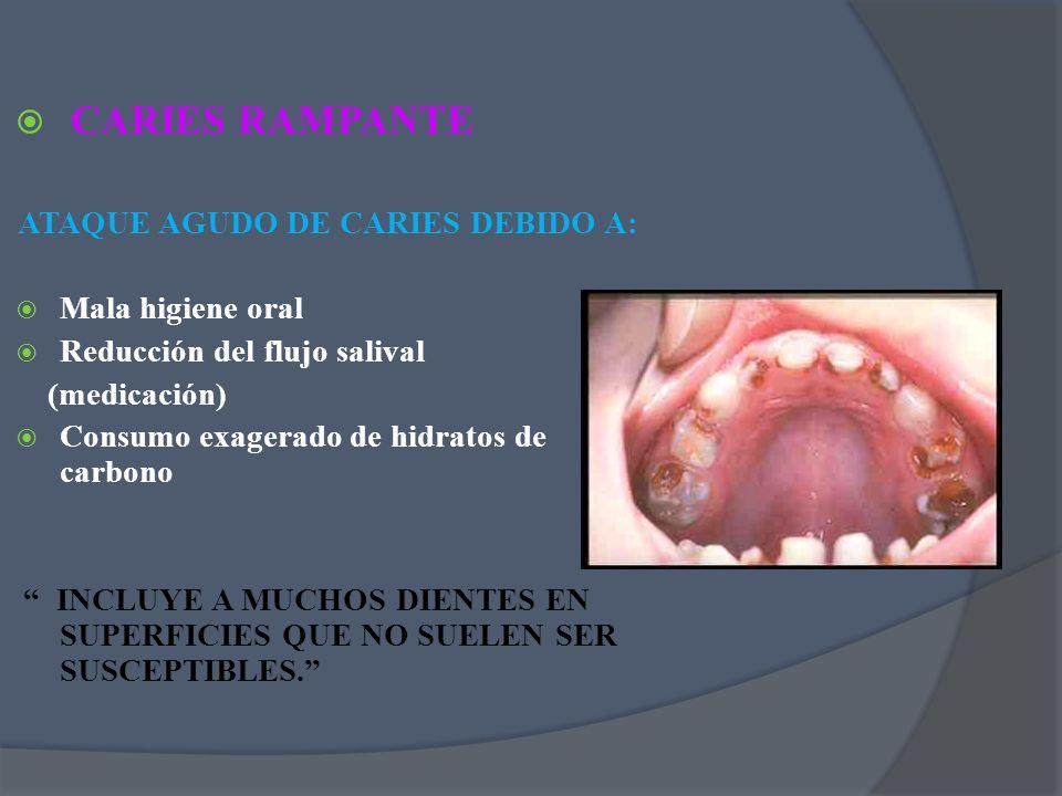 CARIES RAMPANTE ATAQUE AGUDO DE CARIES DEBIDO A: Mala higiene oral Reducción del flujo salival (medicación) Consumo exagerado de hidratos de carbono I