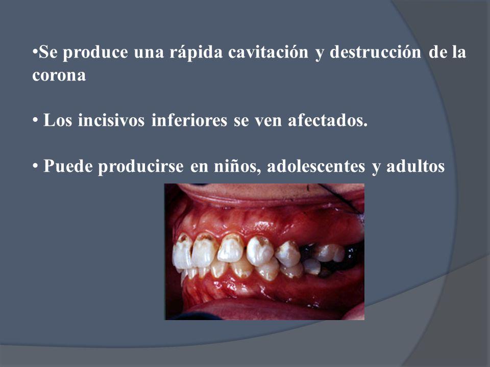 Se produce una rápida cavitación y destrucción de la corona Los incisivos inferiores se ven afectados. Puede producirse en niños, adolescentes y adult