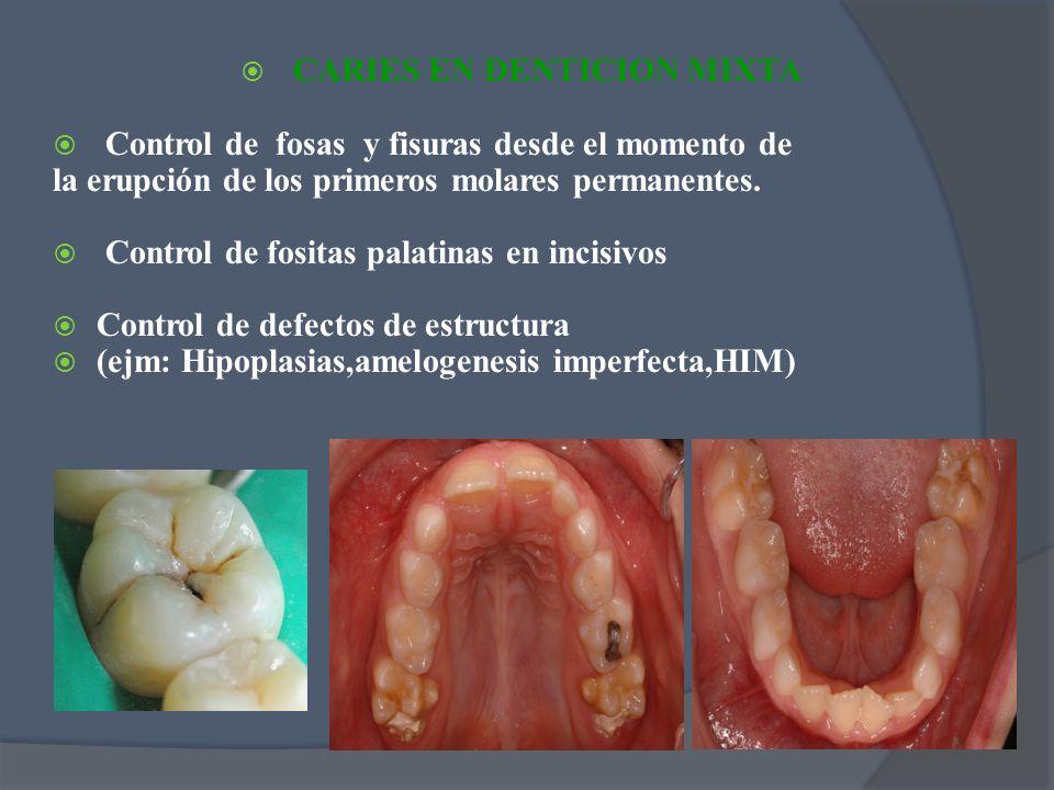CARIES EN DENTICION MIXTA Control de fosas y fisuras desde el momento de la erupción de los primeros molares permanentes. Control de fositas palatinas