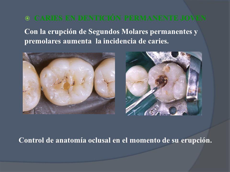 CARIES EN DENTICIÓN PERMANENTE JOVEN Con la erupción de Segundos Molares permanentes y premolares aumenta la incidencia de caries. Control de anatomía