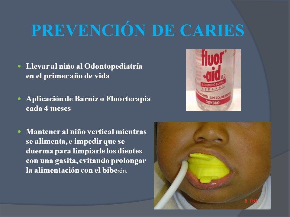 Llevar al niño al Odontopediatría en el primer año de vida Aplicación de Barniz o Fluorterapia cada 4 meses Mantener al niño vertical mientras se alim