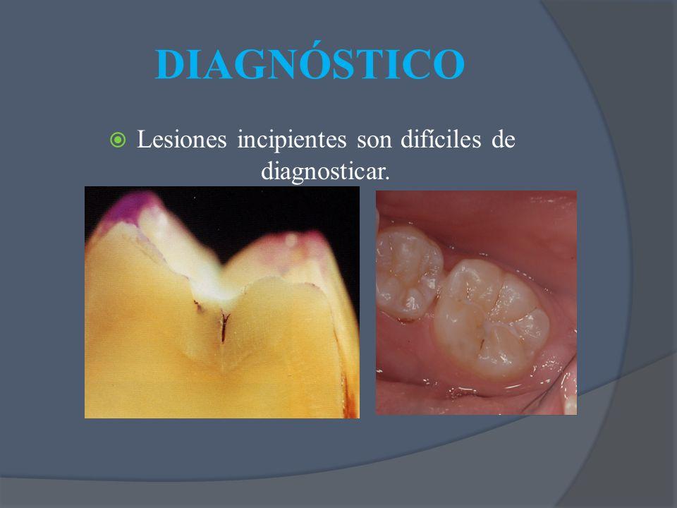 DIAGNÓSTICO Lesiones incipientes son difíciles de diagnosticar.