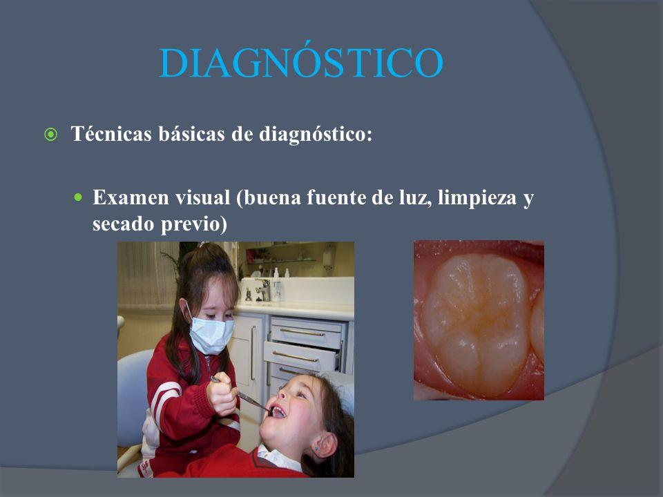 DIAGNÓSTICO Técnicas básicas de diagnóstico: Examen visual (buena fuente de luz, limpieza y secado previo)