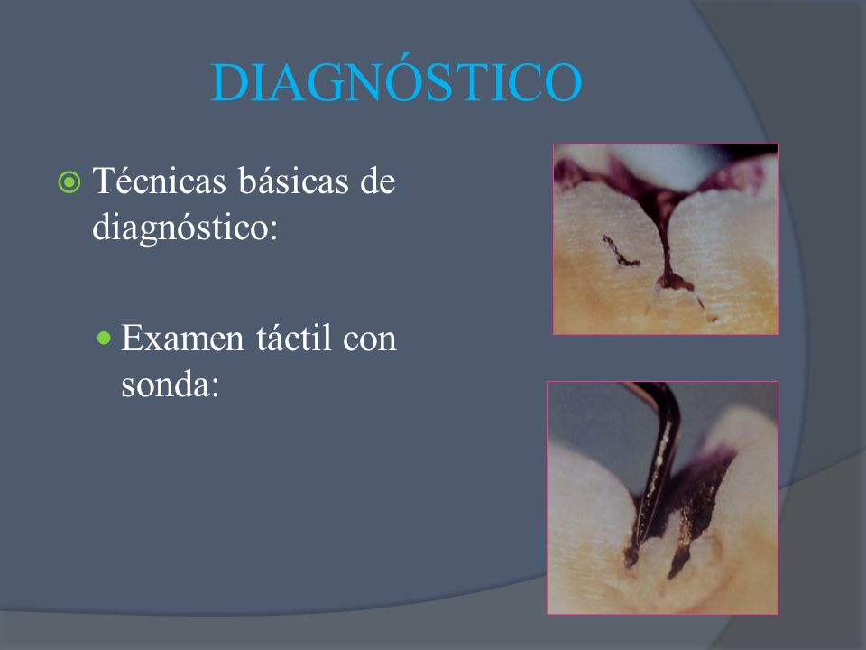 Técnicas básicas de diagnóstico: Examen táctil con sonda: DIAGNÓSTICO