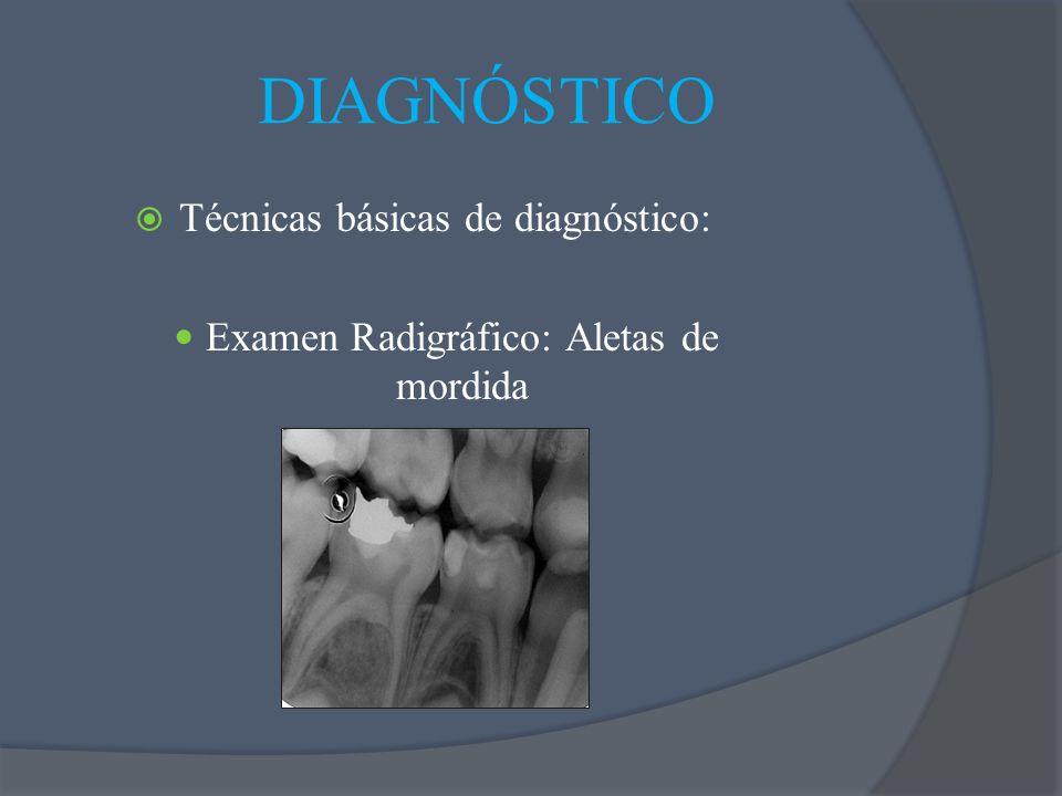 Técnicas básicas de diagnóstico: Examen Radigráfico: Aletas de mordida