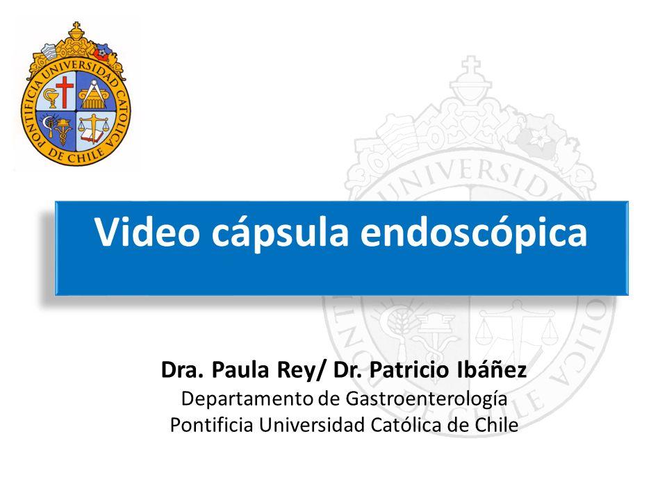 Video cápsula endoscópica Dra. Paula Rey/ Dr. Patricio Ibáñez Departamento de Gastroenterología Pontificia Universidad Católica de Chile