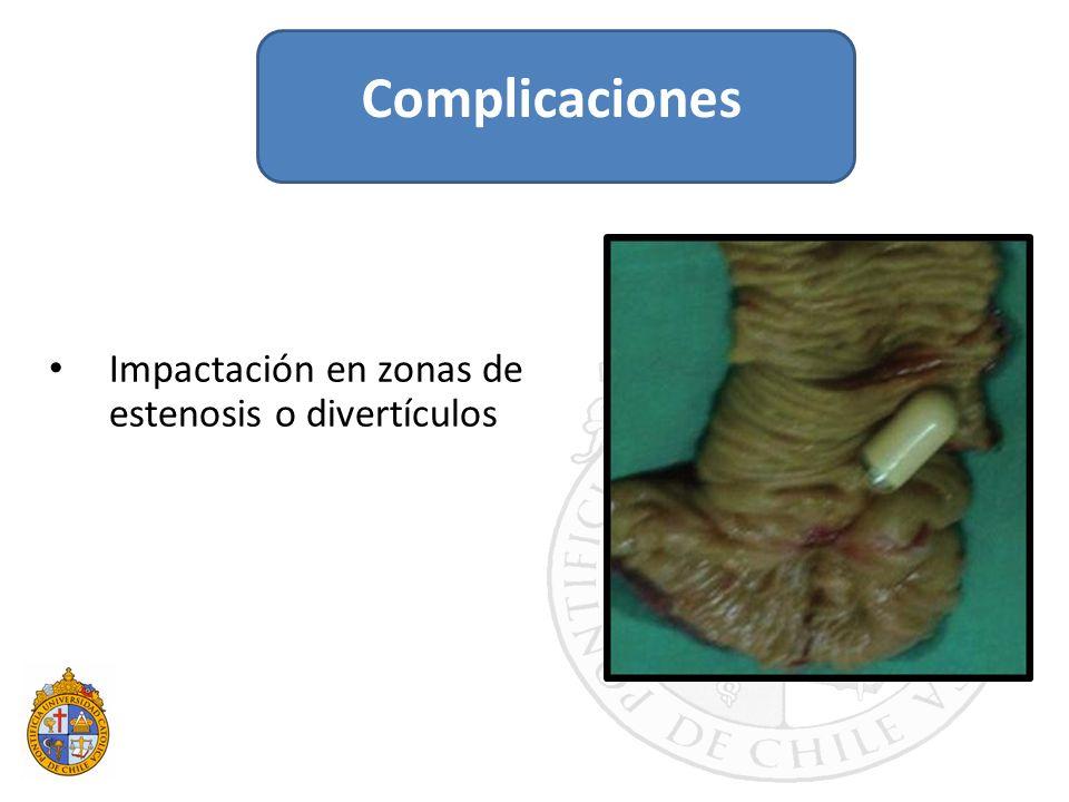 Impactación en zonas de estenosis o divertículos Complicaciones
