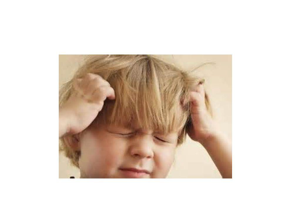 MIGRAÑA SIN AURA Ocurre en 60 a 85% de los niños con migraña.