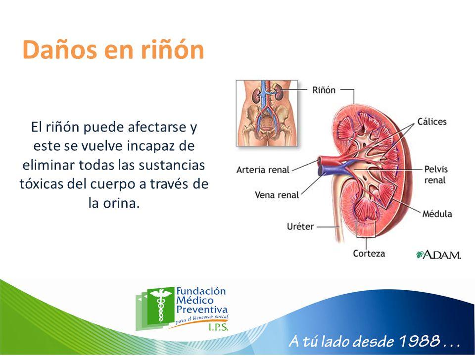 Daños en riñón El riñón puede afectarse y este se vuelve incapaz de eliminar todas las sustancias tóxicas del cuerpo a través de la orina.