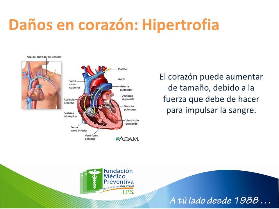 Daños en corazón: Hipertrofia El corazón puede aumentar de tamaño, debido a la fuerza que debe de hacer para impulsar la sangre.