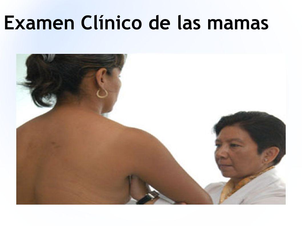 Examen Clínico de las mamas