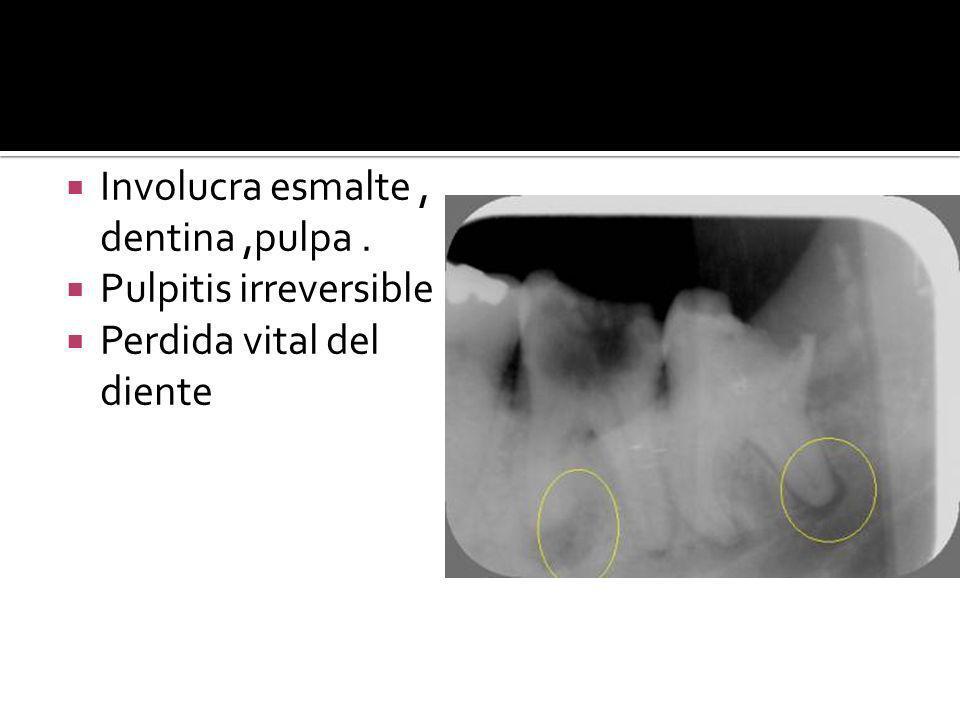Involucra esmalte, dentina,pulpa. Pulpitis irreversible Perdida vital del diente