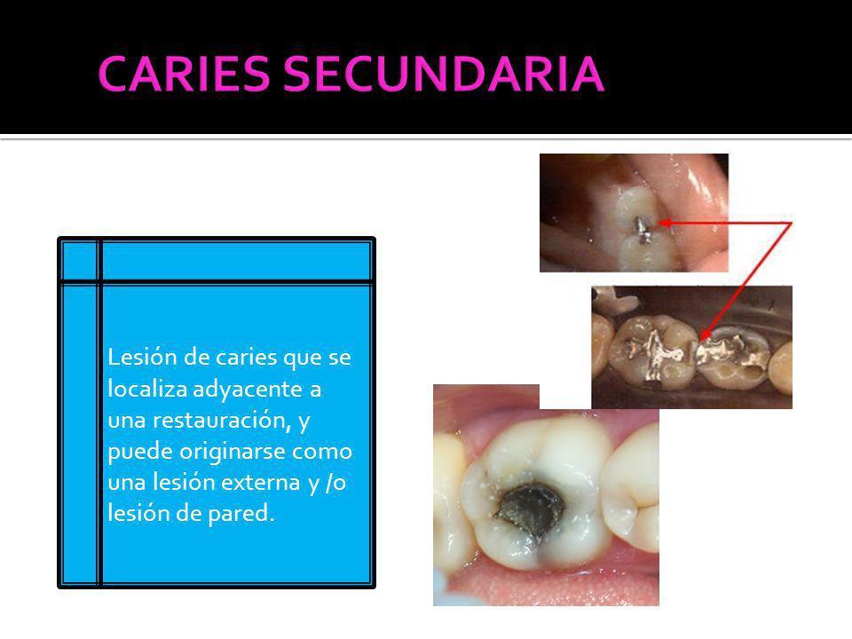 Lesión de caries que se localiza adyacente a una restauración, y puede originarse como una lesión externa y /o lesión de pared.