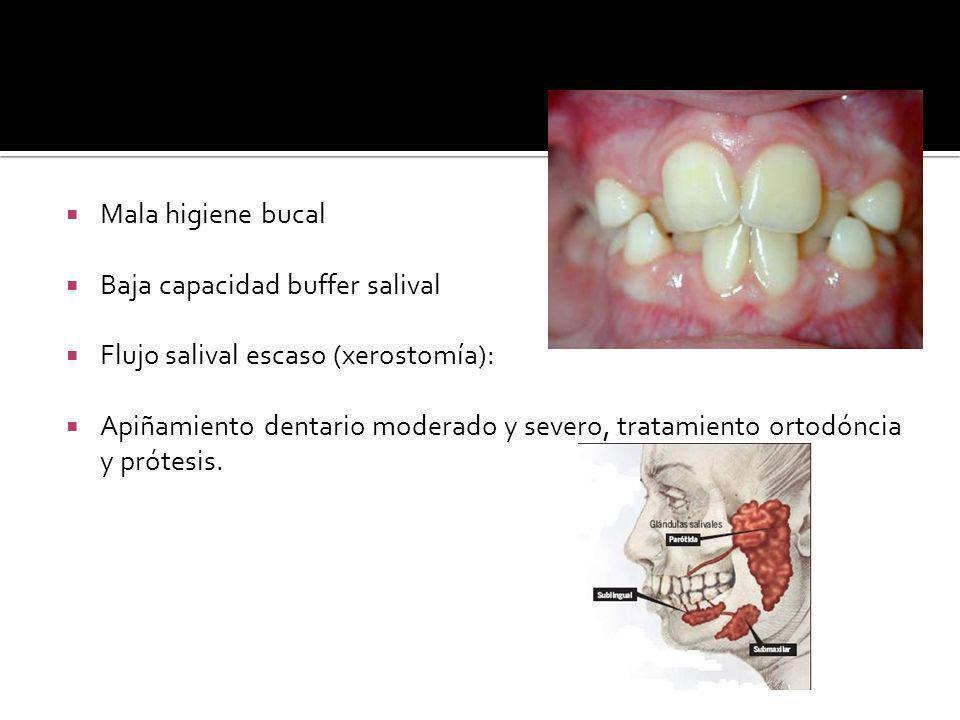 Mala higiene bucal Baja capacidad buffer salival Flujo salival escaso (xerostomía): Apiñamiento dentario moderado y severo, tratamiento ortodóncia y prótesis.