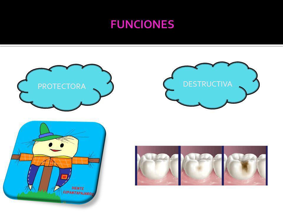 La caries radicular es aquel proceso carioso que se produce sobre la raíz expuesta del diente.
