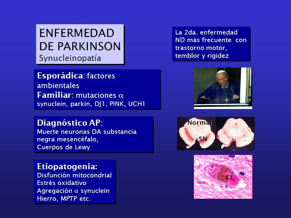 ENFERMEDAD DE PARKINSON Synucleinopatía ENFERMEDAD DE PARKINSON Synucleinopatía Esporádica : factores ambientales Familiar: mutaciones synuclein, park