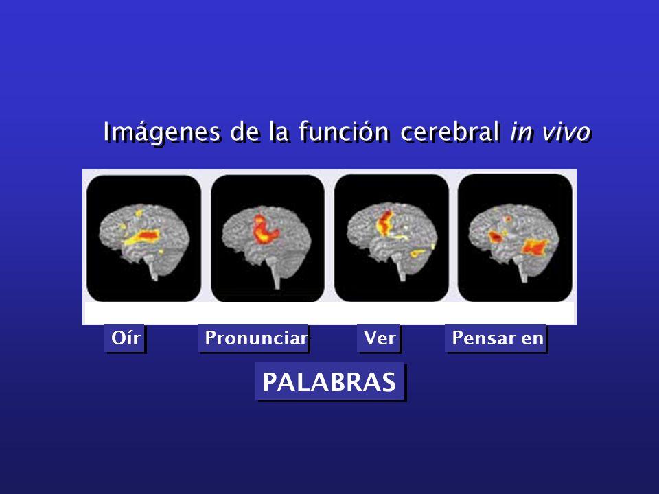 Imágenes de la función cerebral in vivo Oír Pronunciar Ver Pensar en PALABRAS