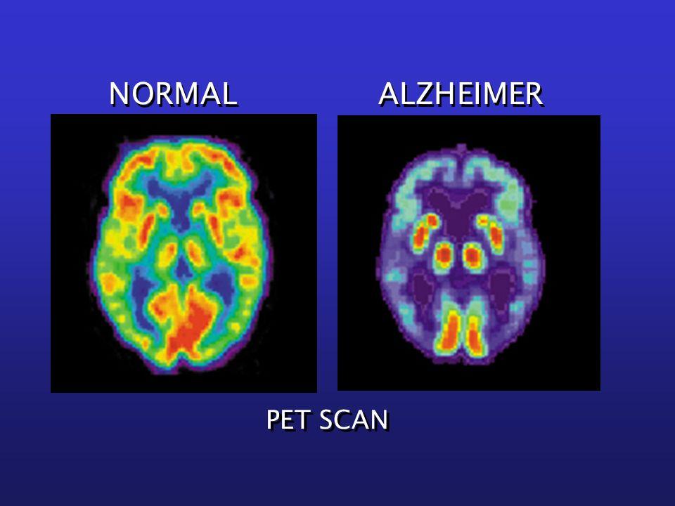 PET SCAN NORMAL ALZHEIMER