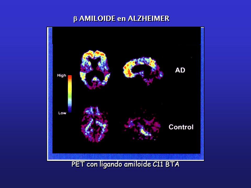 PET con ligando amiloide C11 BTA AMILOIDE en ALZHEIMER