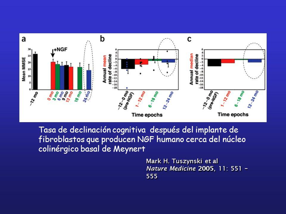 Tasa de declinación cognitiva después del implante de fibroblastos que producen NGF humano cerca del núcleo colinérgico basal de Meynert Mark H. Tuszy