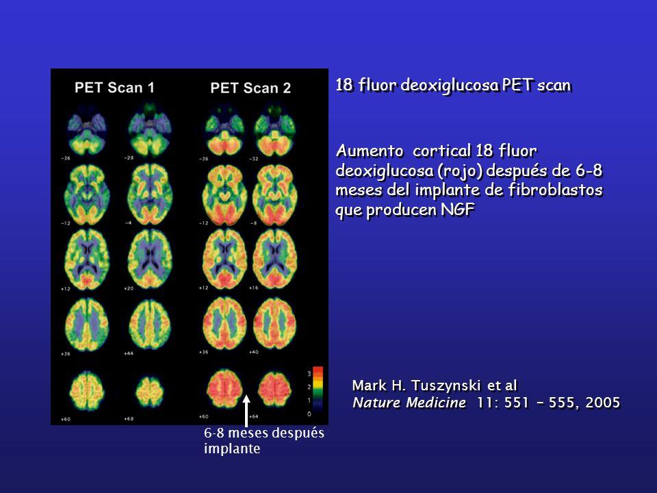 Aumento cortical 18 fluor deoxiglucosa (rojo) después de 6-8 meses del implante de fibroblastos que producen NGF 18 fluor deoxiglucosa PET scan Mark H