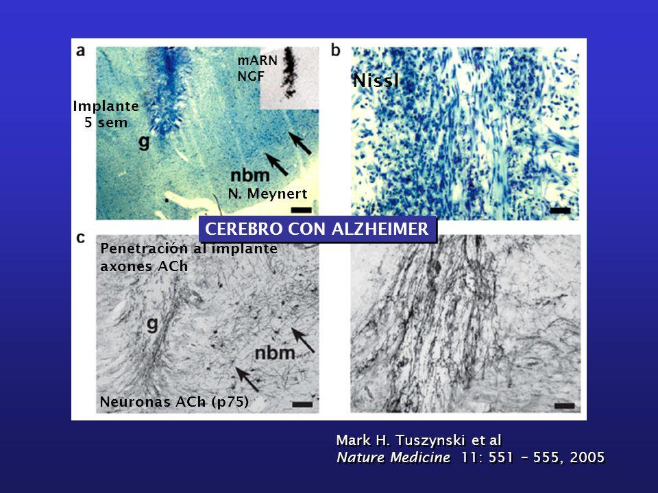 CEREBRO CON ALZHEIMER Nissl 5 sem mARN NGF N. Meynert Neuronas ACh (p75) Penetración al implante axones ACh Implante Mark H. Tuszynski et al Nature Me