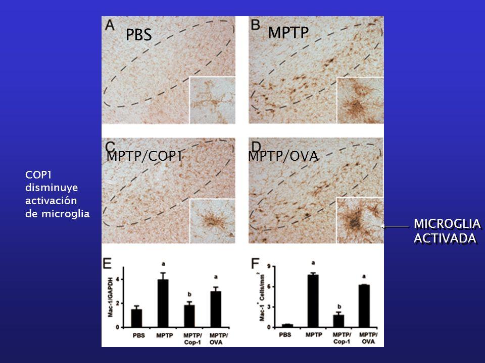 PBS MPTP MPTP/COP1MPTP/OVA MICROGLIA ACTIVADA MICROGLIA ACTIVADA COP1 disminuye activación de microglia