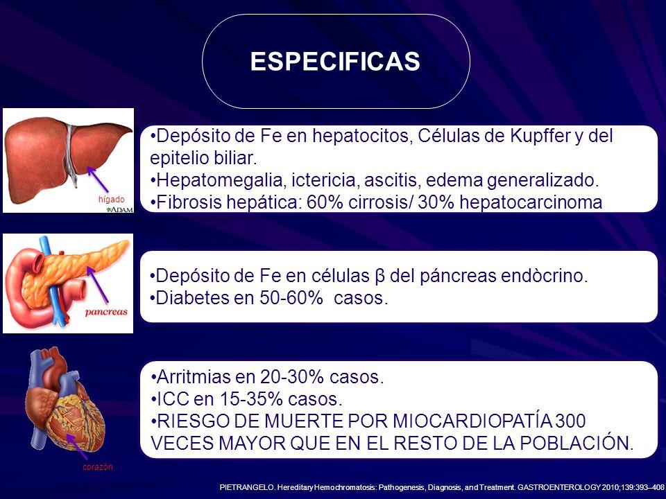 Depósito de Fe en hepatocitos, Células de Kupffer y del epitelio biliar. Hepatomegalia, ictericia, ascitis, edema generalizado. Fibrosis hepática: 60%