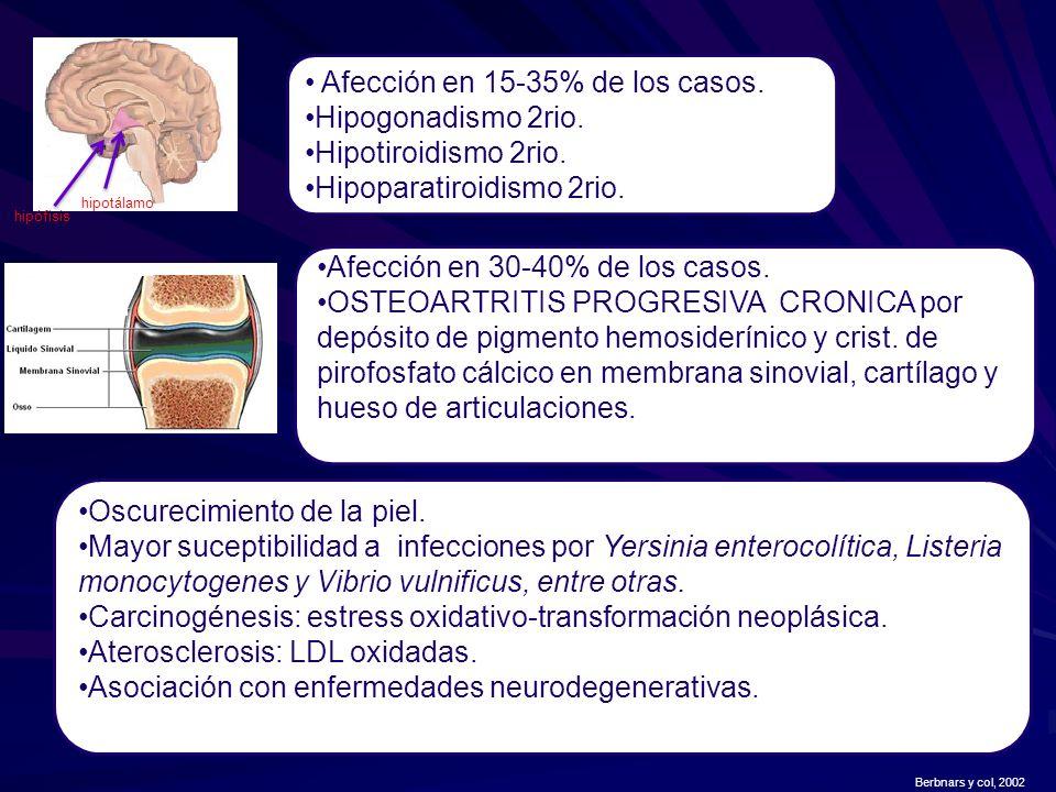 Afección en 15-35% de los casos. Hipogonadismo 2rio. Hipotiroidismo 2rio. Hipoparatiroidismo 2rio. hipotálamo hipófisis Afección en 30-40% de los caso