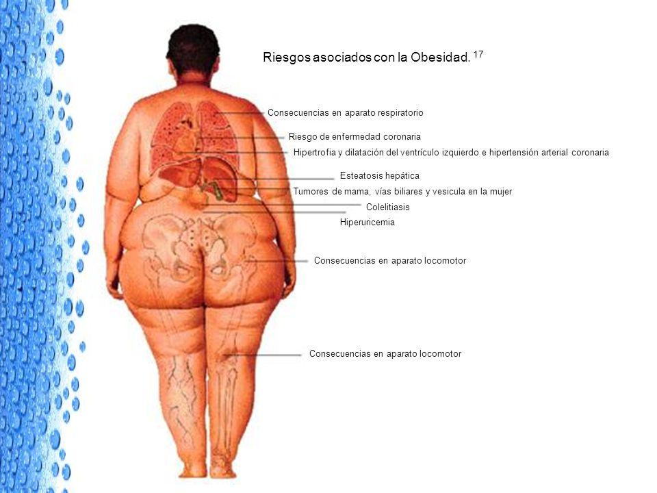 Riesgos asociados con la Obesidad. 17 Consecuencias en aparato respiratorio Riesgo de enfermedad coronaria Hipertrofia y dilatación del ventrículo izq