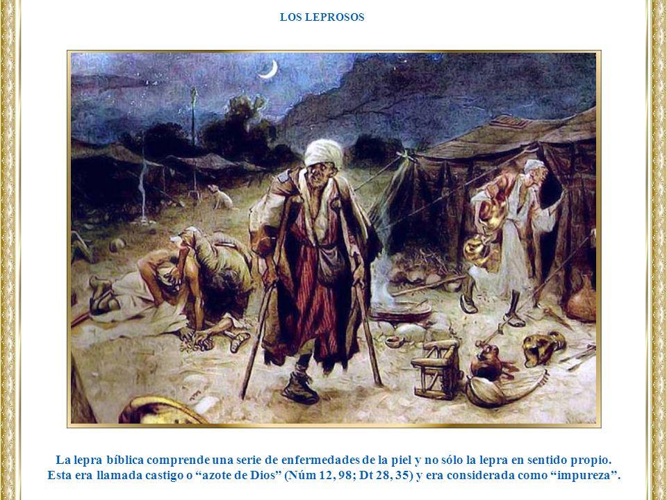 LOS LEPROSOS La lepra bíblica comprende una serie de enfermedades de la piel y no sólo la lepra en sentido propio. Esta era llamada castigo o azote de