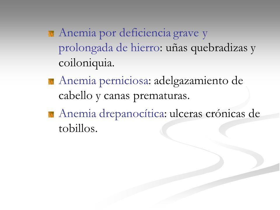 Anemia por deficiencia grave y prolongada de hierro: uñas quebradizas y coiloniquia. Anemia perniciosa: adelgazamiento de cabello y canas prematuras.